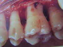 フラップ手術:歯肉、骨膜を剥離し、直視下にて 取り残した歯石を除去し、骨の整形をします。