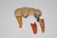 神経 歯 抜く の 歯の神経を抜きましたが、痛みが治まりません。